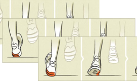 Understanding-pronation-925x367_normal